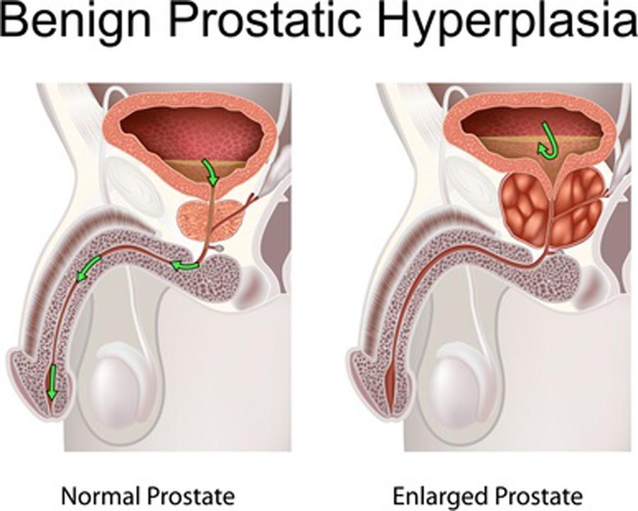 Fisioterapia Urológica Próstata 5