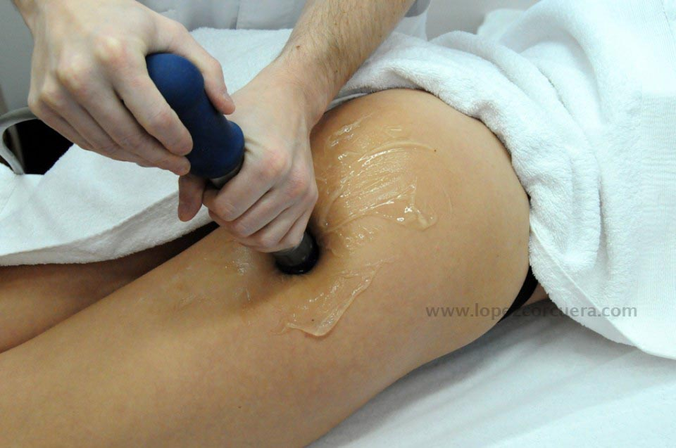 Tratamiento anticelulítico 2