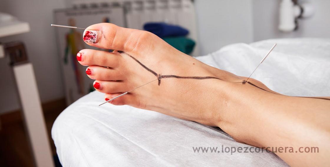 Acupuntura tratamientos en dolor crónico