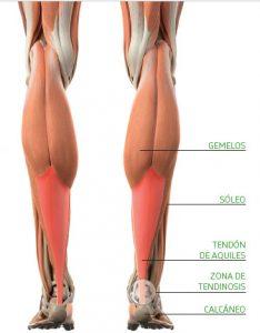 Tendón de aquiles (músculos)
