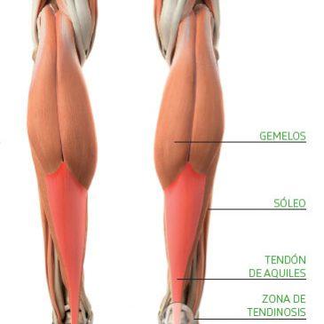 Lesión del tendón de Aquiles