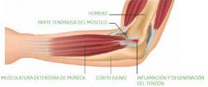 anatomia de la epicondilalgia lateral