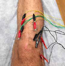 tratamiento cicatriz con indiba