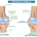 partes de la rodilla quiste parameniscal