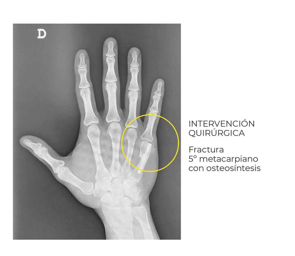 La fractura del boxeador intervención quirúrgica