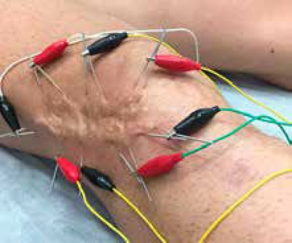 cicatriz postquirúrgica tratamiento
