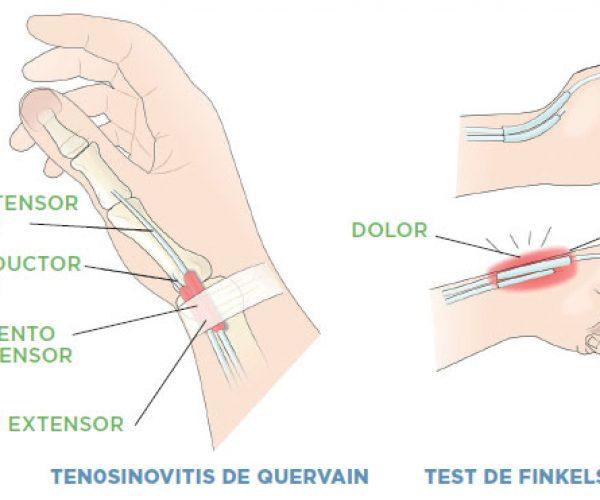 La Tendinitis o Tenosinovitis de Quervain